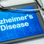 Senior Care in Elk Grove CA: Four Steps Towards Successful Alzheimer's Care